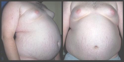 Obesity6